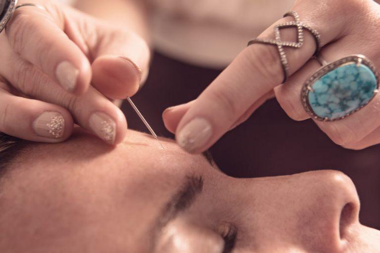 Service-Acupuncture